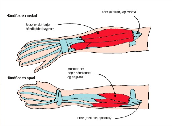 overbelastning af arm
